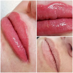 Lip Color Treatment 1st Session